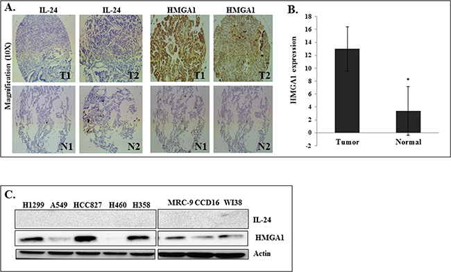 HMGA1 and IL-24 expression in human primary lung tumors and in cultured human lung cancer cells.