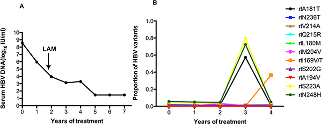 The dynamic changes in HBV DNA levels and resistance-associated variants in the RT domains during ADV+LAM treatment in patient 5.