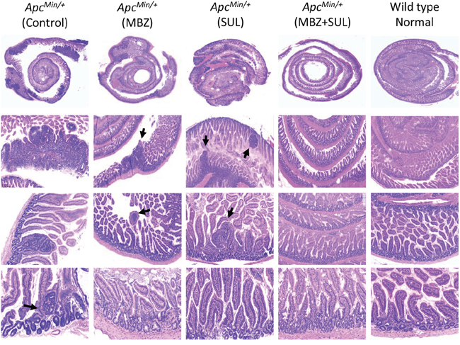 The combination of MBZ plus sulindac reduces the formation of microadenomas.