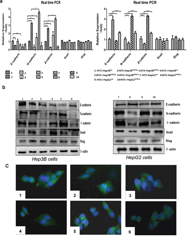 NTS/NTR1 co-expression significantly promoted EMT process in HCC cell lines.