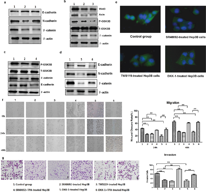 Inhibition of NTS signaling and Wnt/β-catenin pathway activation reversed the NTS-induced EMT and prevented the tumor invasion of HCC cells.