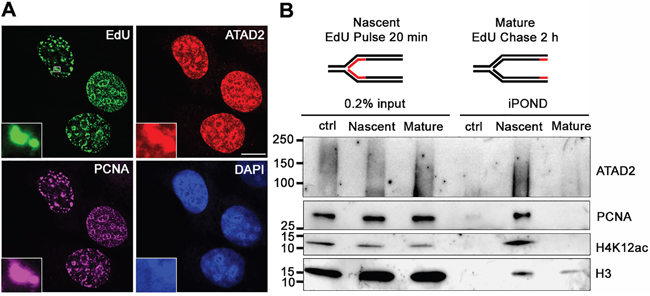 ATAD2 is recruited to DNA replication sites.