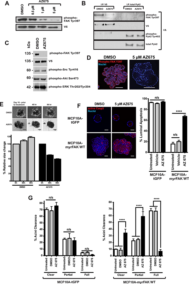 Inhibition of FAK in 3D-mammary cultures selectively induces apoptosis in the luminal cells.