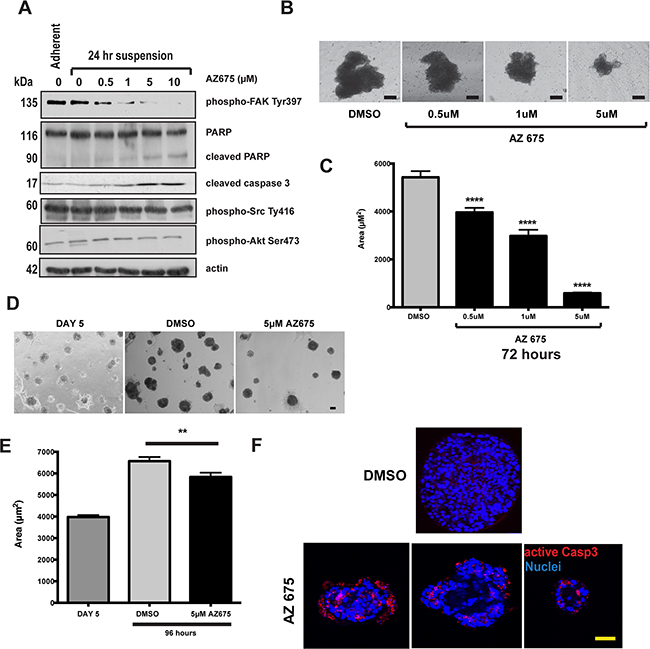 4T1 breast cancer cells that show adhesion independent FAK signalling are sensitive to FAK inhibition.