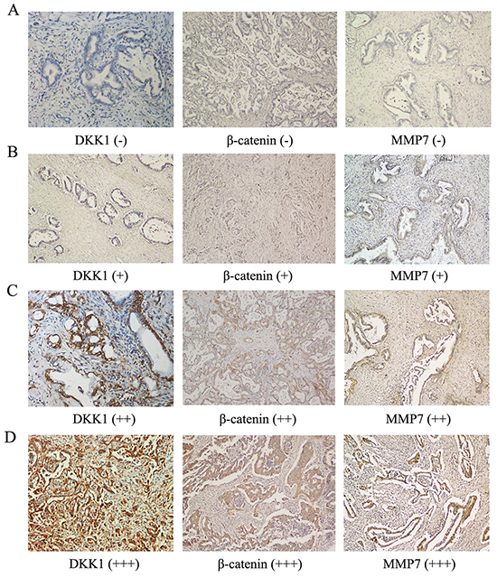 Expression of DKK1, β-catenin and MMP-7 in human HCCA tissues.