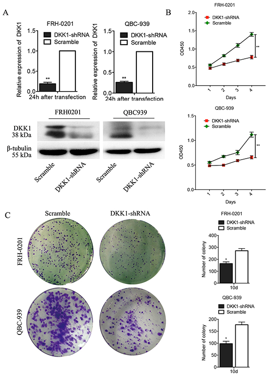 Transfection of DKK1-shRNA represses proliferation and colony formation of QBC939 and FRH0201 cells in vitro.