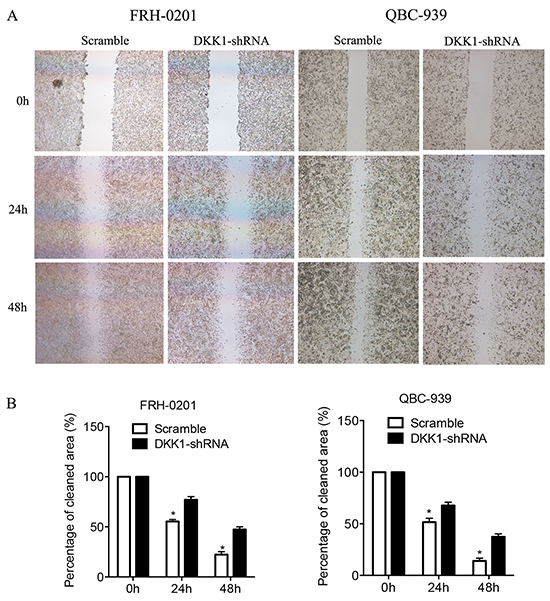 Transfection of DKK1-shRNA represses the migration of QBC939 and FRH0201 cells in vitro.