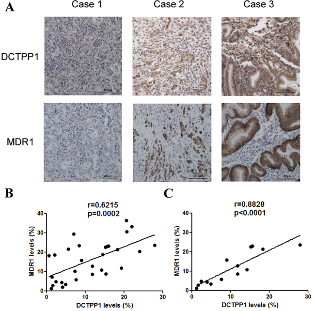 Correlation analysis of DCTPP1 and MDR1 expression in gastric cancer tissues.