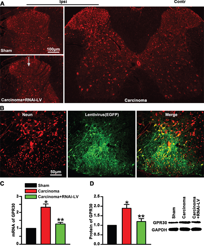 Upregulation of GPR30 in the spinal cord of cancer-bearing rats.