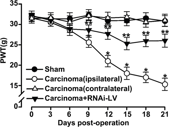GPR30 induced the development of BCP.