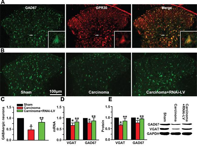GPR30 diminished inhibitory transmission of GABAergic neurons.