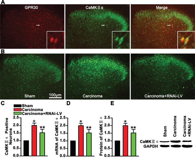 GPR30 enhanced excitatory transmission of glutamatergic neurons.