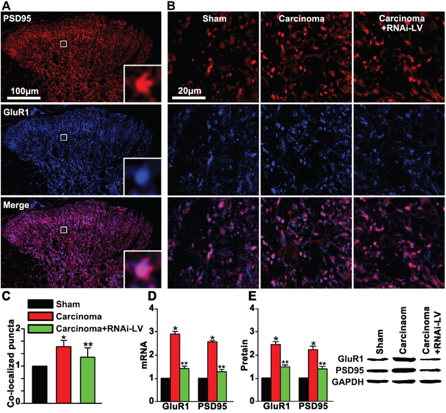 GPR30 up-regulated GluR1 and PSD95 in the dorsal horn of cancer-bearing rats.