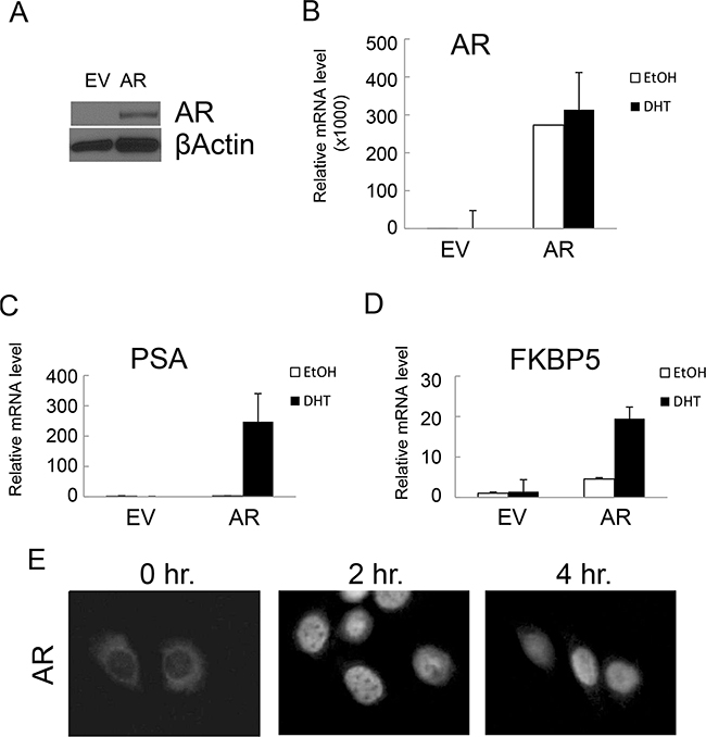 Ectopic expression of AR conferred functional AR-mediated androgen signaling in NHPrE1 cells.