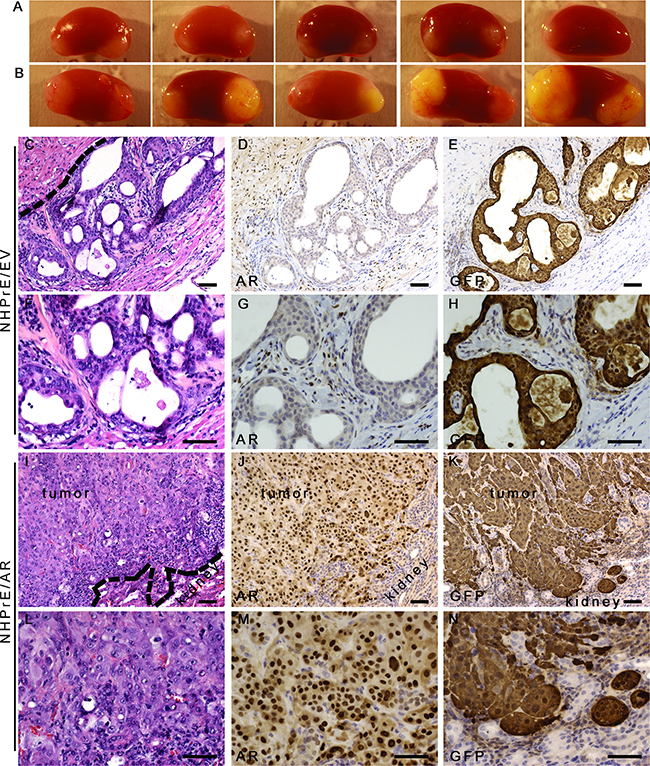 Ectopic-expression of AR transformed NHPrE1 cells in vivo.