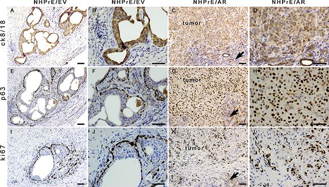 Histology of NHPrE1/EV and NHPrE1/AR grafts.