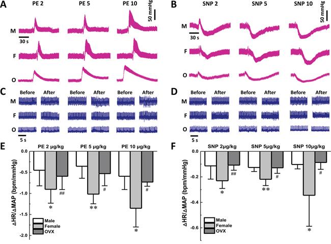 Effect on baroreflex sensitivity of gender difference during vasoactive drugs application.
