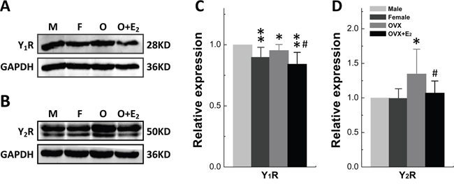 Gender difference in protein expression of Y1R and Y2R in Nodose Ganglia.