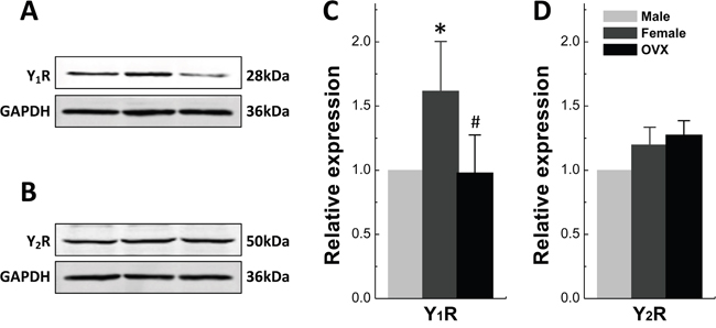 Protein Expression of Y1R and Y2R in Nucleus of Tractus Solitarii.
