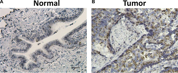 Representative hematoxylin (HE) and ZIP4 IHC staining in surrounding normal tissues (A) and lung cancer tissues (B).