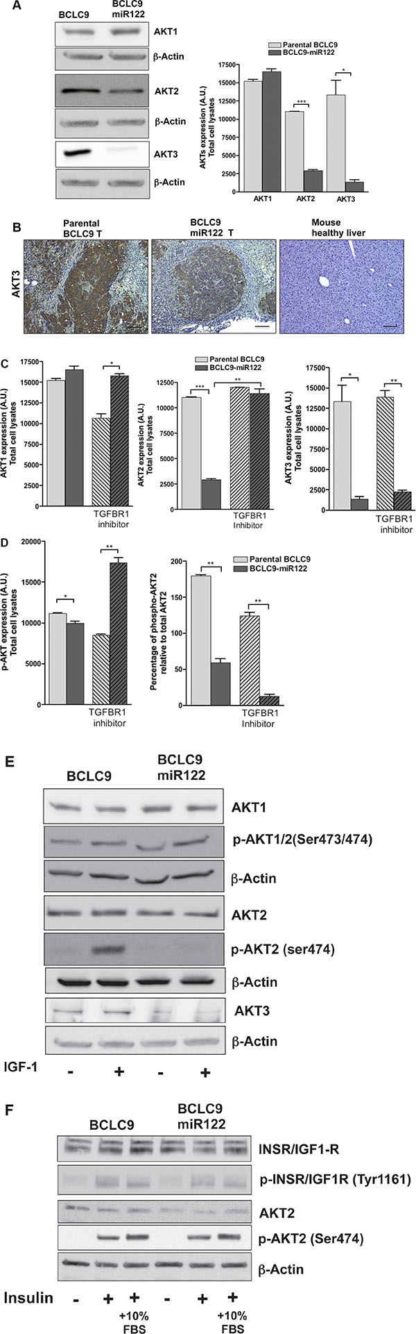 miR122 regulates AKT expression and activation.