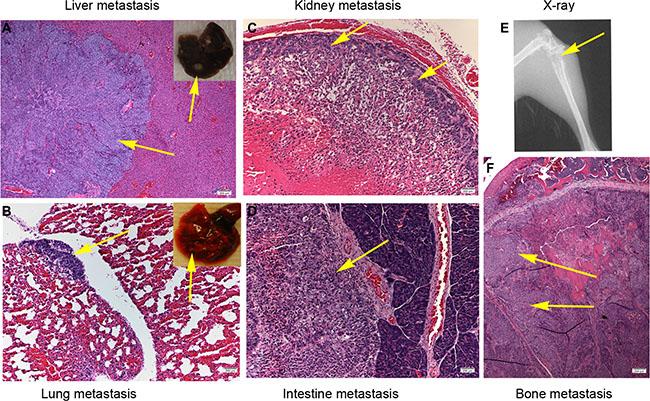 IGFBP6 knockdown in CNE2 cells enhances multiple distant organ metastases in mice.