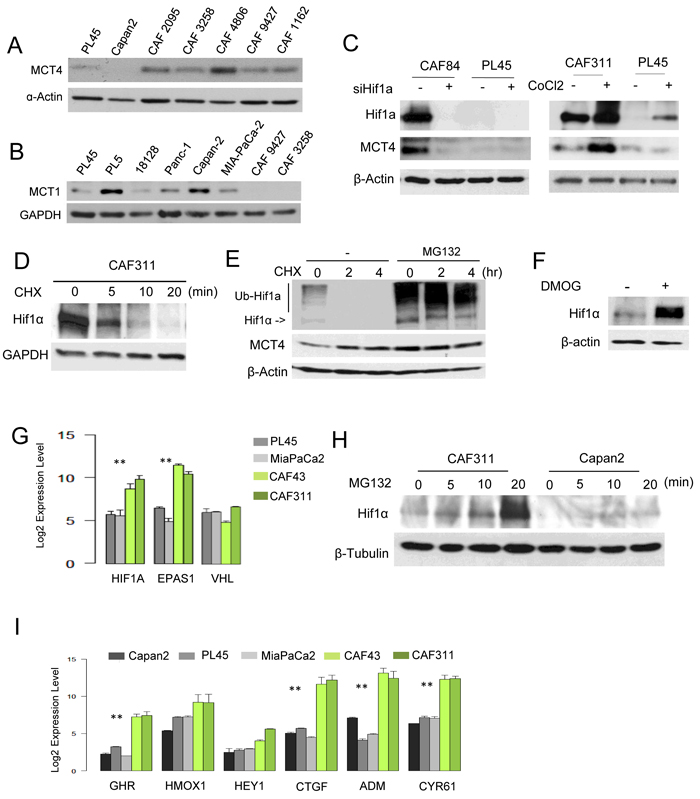 Aberrant HIF1α expression in PDAC cancer associated fibroblasts.