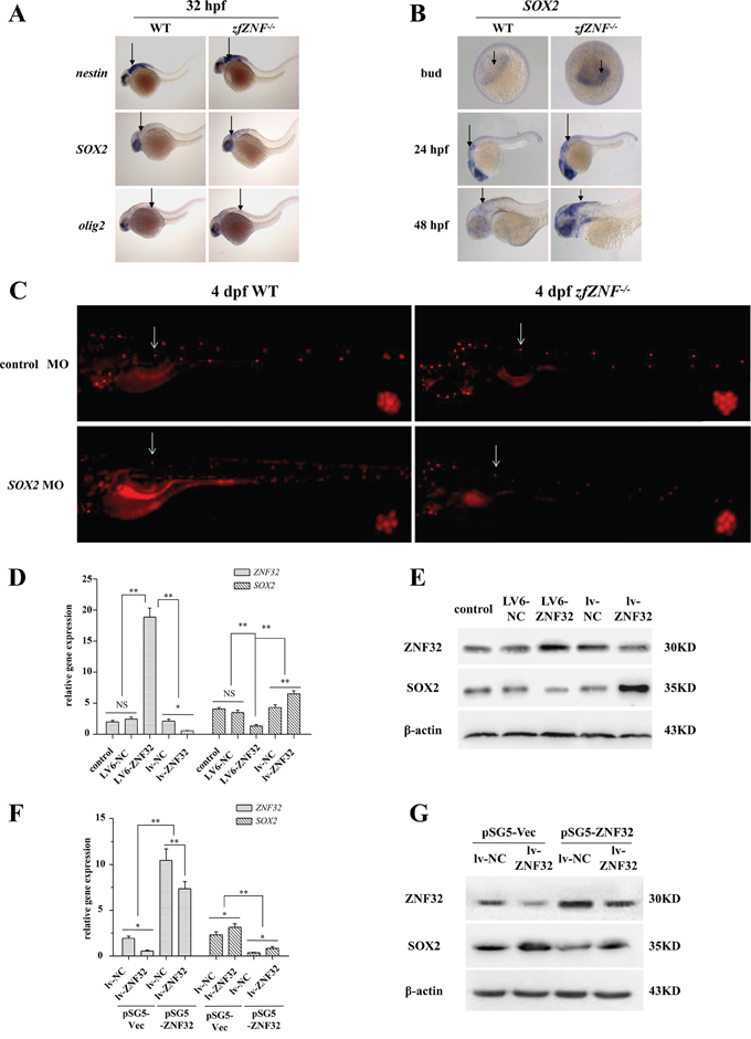ZNF32 negatively regulates SOX2 expression in vivo and in vitro.