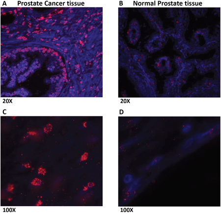 Prostate cancer tissues show increased expression of LLT1 as compared to normal prostate tissues.