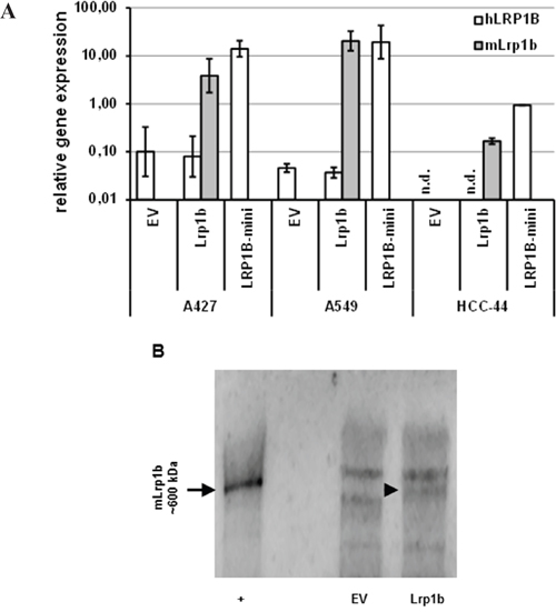Effective expression of Lrp1b in non-small cell lung cancer cells.
