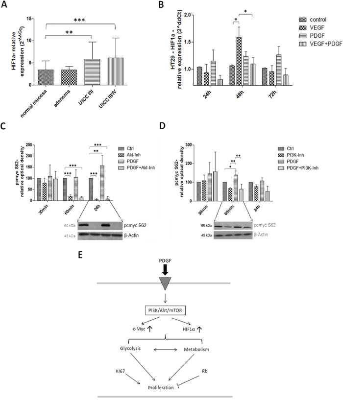 Investigation of HIF1α in human colon cancer probes (A), and in HT29 cells (B) and c-Myc (C and D) in HT29 cells (E).