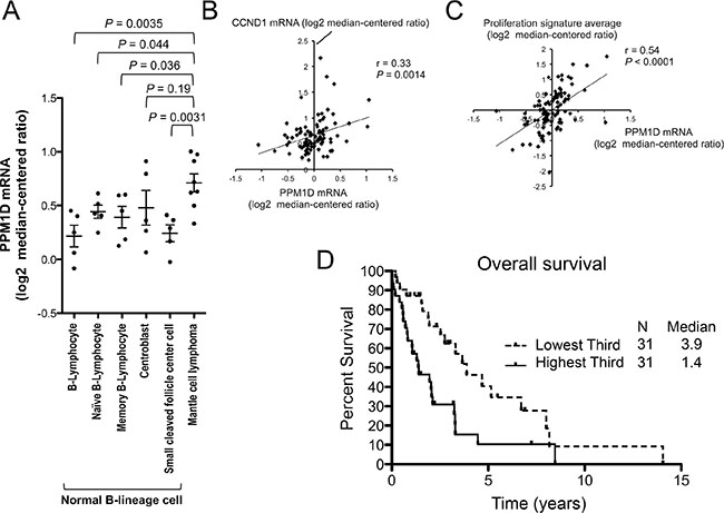 High PPM1D expression is associated with a highly proliferative disease phenotype and poor prognosis in patients with mantle cell lymphoma (MCL).