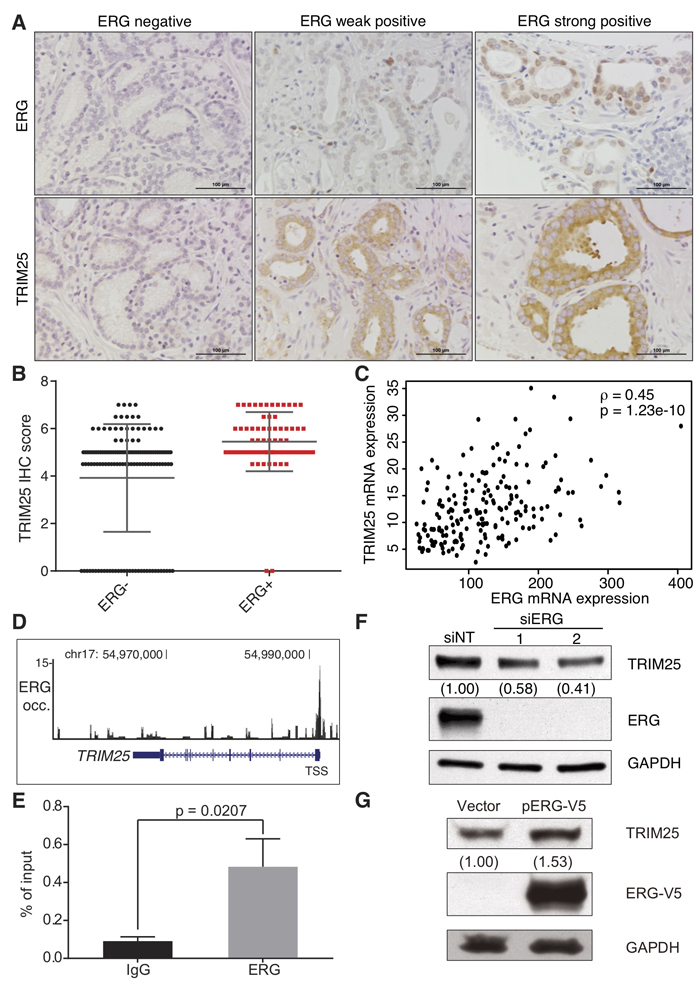 ERG is a positive transcriptional regulator of TRIM25 expression in prostate cancer.