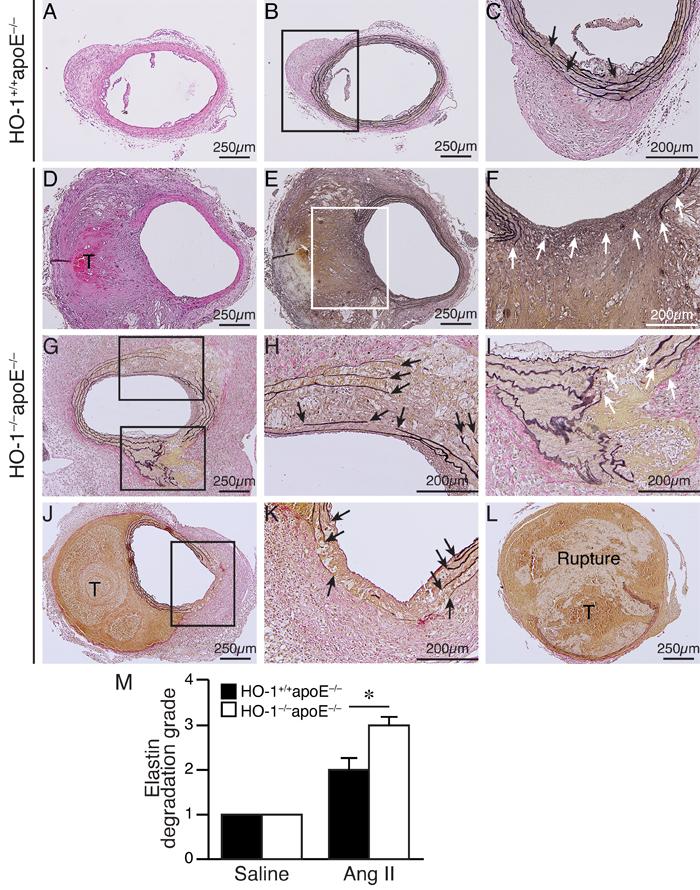 Enhanced elastin degradation in angiotensin II-infused HO-1