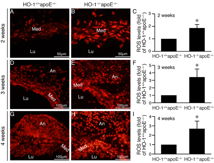 Lack of HO-1 enhances ROS levels in the aortic wall of angiotensin II-infused mice.