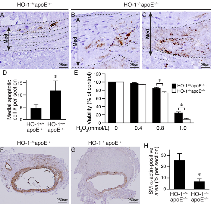 Loss of HO-1 increases VSMC death and reduces VSMC content in AAAs of angiotensin II-infused mice.
