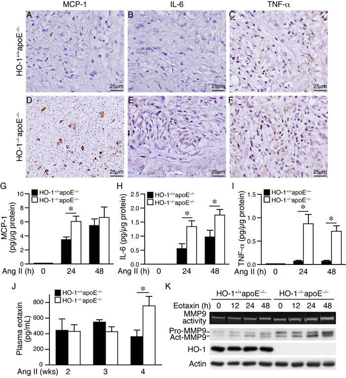Lack of HO-1 aggravates inflammatory responses in AAAs and in angiotensin II-treated macrophages.