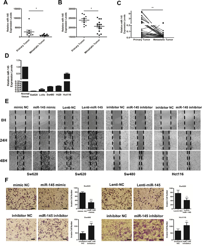 MiR-145 is downregulated in metastatic CRC tumors and inhibits the invasion and metastasis of CRC cells in vitro.