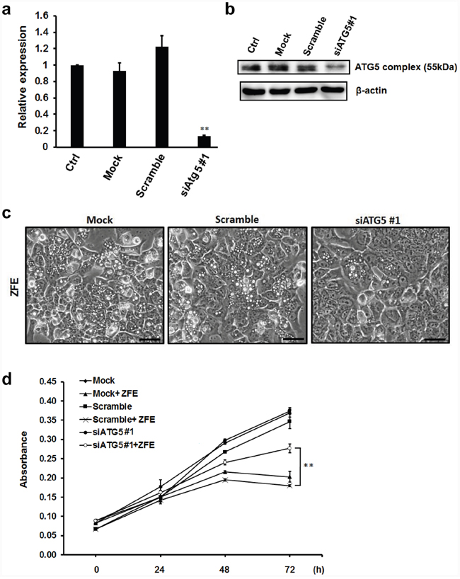 Knockdown of ATG5 protein inhibits the anticancer effect of ZFE in DLD-1 cells.