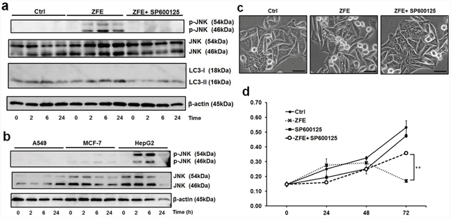 ZFE increases the phosphorylation of JNK, and the JNK inhibitor SP600125 inhibits the anticancer effect of ZFE.