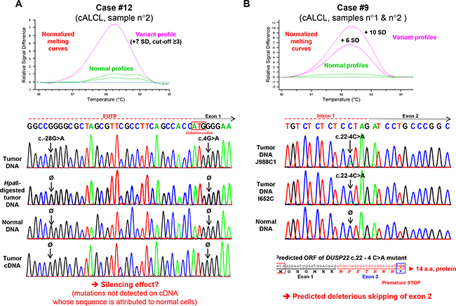 Identification of somatic DUSP22 mutations in cutaneous anaplastic large T-cell lymphomas.