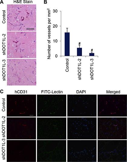 Depletion of DOT1L inhibits angiogenesis in vivo.