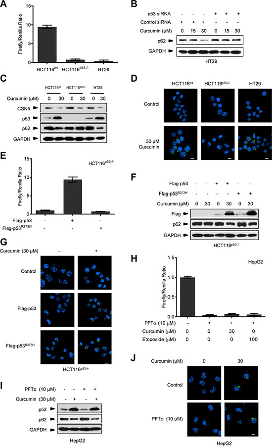 Curcumin controls p53 to induce autophagy uncorrelated to its transcriptional activity.