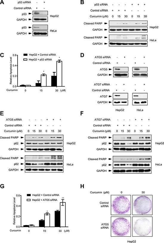 Autophagy inhibition improves the killing effect of curcumin on p53-positive cancer cells.
