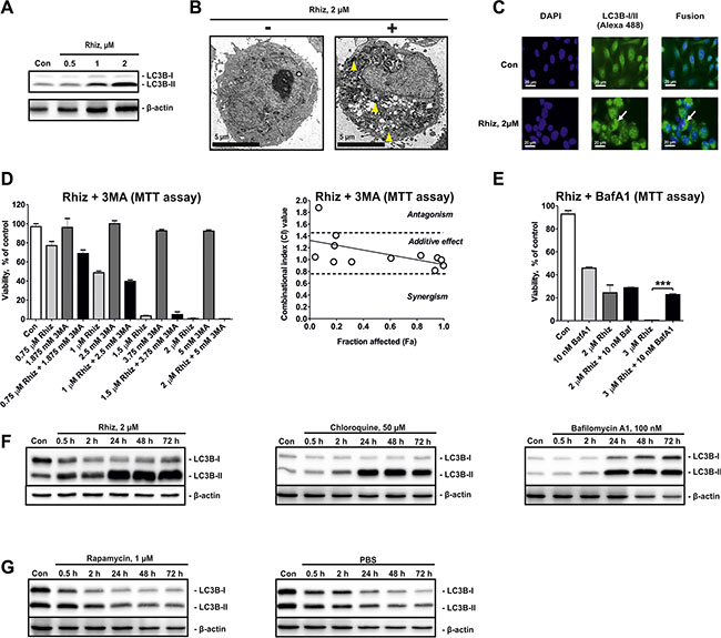 Hallmarks of autophagy inhibition in PC-3 cells treated with Rhiz.