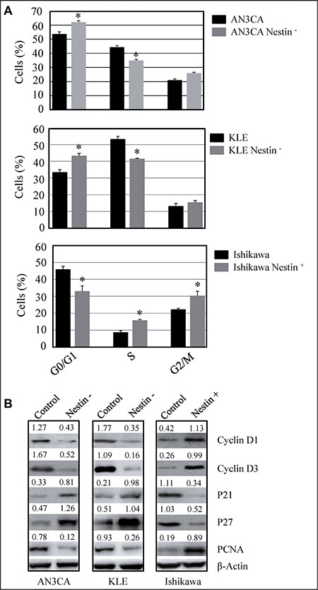 Nestin knockdown suppresses and overexpression enhances cell cycle progression.