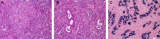Histological features of lymphoepithelioma-like cholangiocarcinoma.