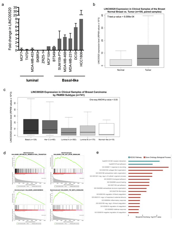 Expression Analysis in Clinical Samples of Human Breast Invasive Carcinoma.