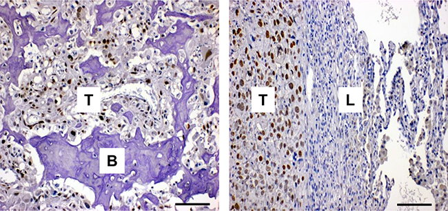 FOXC2 is expressed in human osteosarcoma.