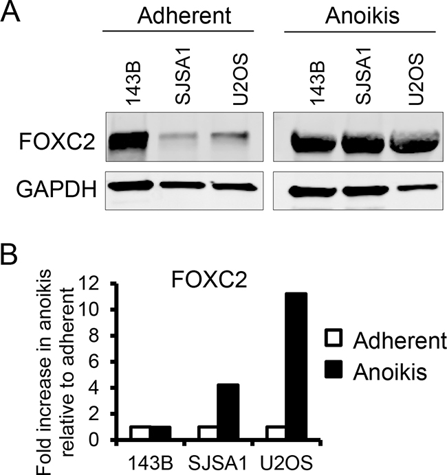 Anoikis increases FOXC2 levels.